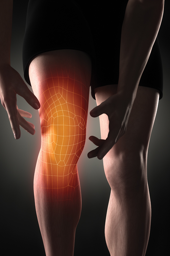 image showing a sports injury before cryo uk cryotherapy treatment